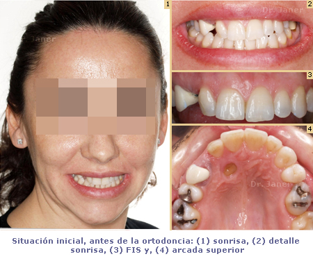 situación inicial antes ortodoncia en caso de canino incluido_janerortodoncia