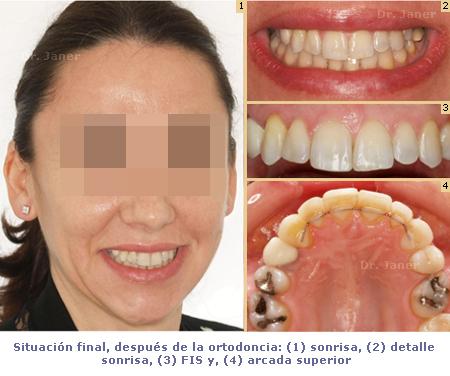 02situacion final despues ortodoncia en caso de canino includo_janerortodoncia