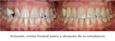 03oclusion vision forntal antes y despues ortodoncia en caso de canino includo_janerortodoncia