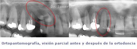 04pan antes y despues ortodoncia en caso de canino includo_janerortodoncia