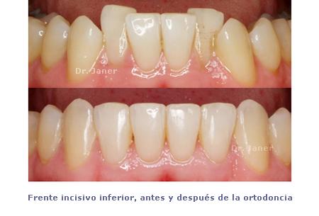 FII antes y después ortodoncia_janerortodoncia