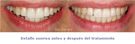 sonrisa antes y despues ortodoncia_janerortodoncia