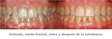 oclusion frontal antes y despues ortodoncia_janerortodoncia