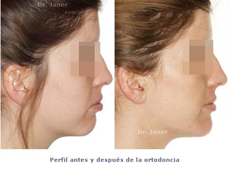 perfil facial antes y despues ortodoncia_janerortodoncia