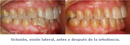oclusion lateral antes y despues ortodoncia_janerortodoncia