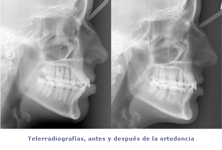 teles antes y despues ortodoncia_janerortodoncia