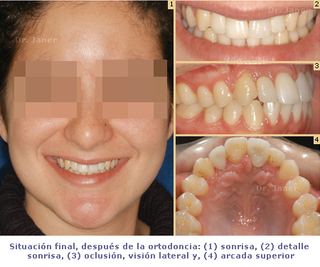situación final después de la ortodoncia_JanerOrtodoncia