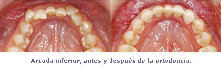 arcada inferior antes y despues ortodoncia_janerortodoncia