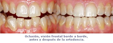borde a borde antes y despues ortodoncia_janerortodoncia