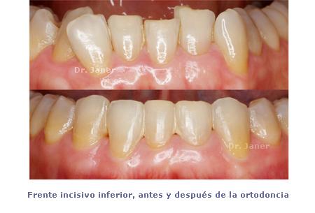 fii antes y despues ortodoncia_janerortodoncia