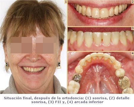 02situacion final en caso de apinamiento dental con invisalign_janerortodoncia