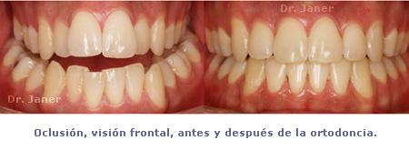 03 oclusion frontal antes y despues en caso de mordida cruzada y paladar estrecho_janerortodoncia