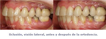 03oclusion lateral antes y despues ortodoncia en caso apinamiento detnal_janerortodoncia