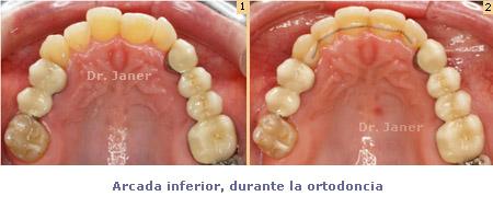 04 arcada superior en caso de apinamiento dental con Invisalign_janerortodoncia