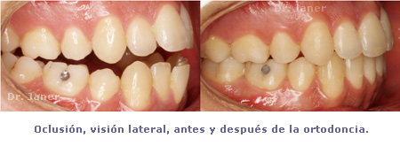 04 oclusion lateral antes y despues en caso de mordida cruzada y paladar estrecho_janerortodoncia