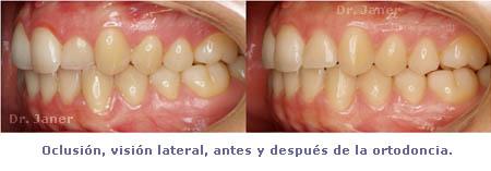 Oclusión antes y después de la ortodoncia con Invisalign