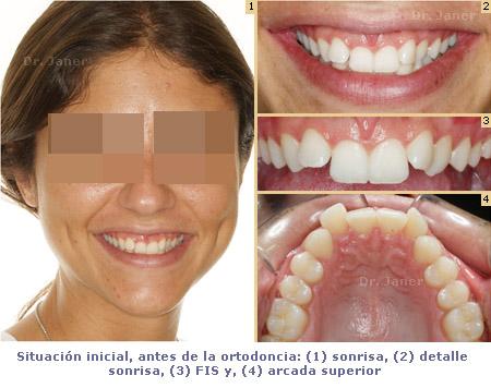 situacion inicial antes ortodoncia_janerortodoncia
