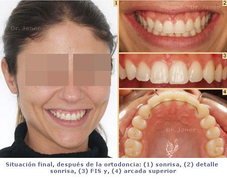 situacion final despues ortodoncia_janerortodoncia